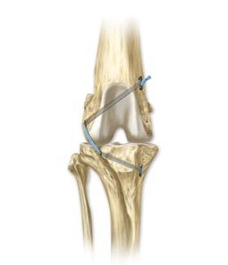 tibial tuberosity advancement (TTA) medial illustration